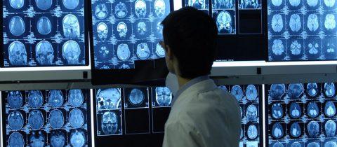 Qu'est-ce qu'une mammographie et quand faut-il y avoir recours ?